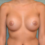after breast augmentation front view case 869