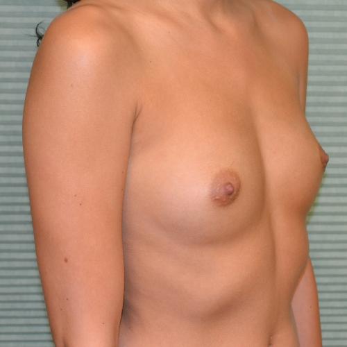 before breast augmentation right oblique view case 869