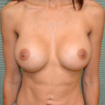 after breast augmentation front view case 915
