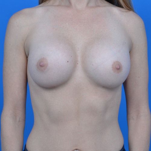 after breast augmentation front view case 908