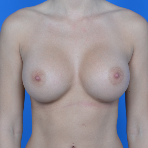 after breast augmentation front view case 876
