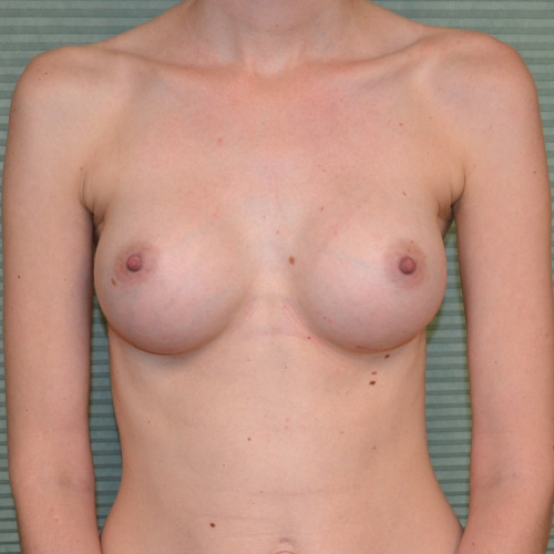 after breast augmentation front view case 922