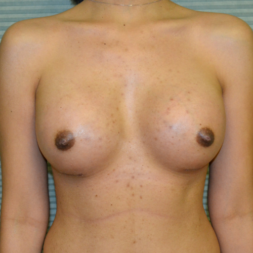 After breast augmentation front view case 900