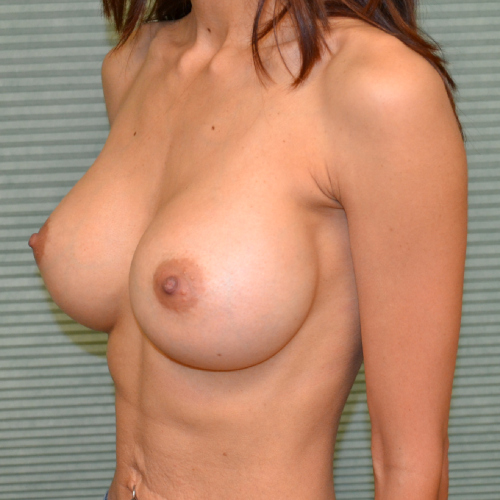 after breast augmentation oblique view case 915