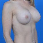 after breast augmentation oblique view case 908