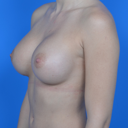 after breast augmentation oblique view case 876