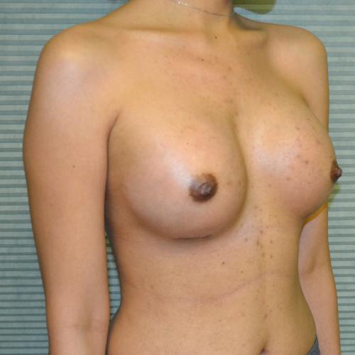 After breast augmentation oblique view case 900