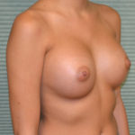 after breast implants oblique view case 869
