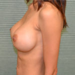 after breast augmentation procedure front view case 915