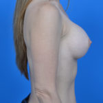 after breast augmentation right side view case 908