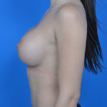 after breast augmentation procedure side view case 876