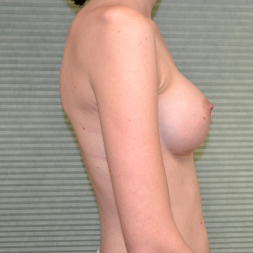 after breast augmentation right side case 922