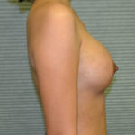 after breast augmentation right side view case 900