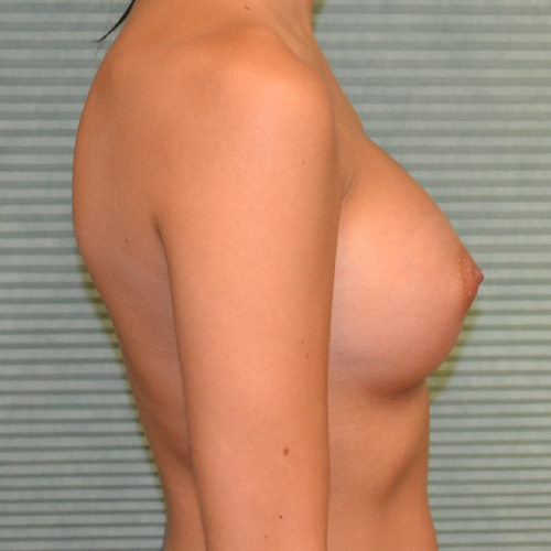 after breast augmentation right side view case 869