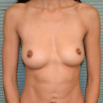 breast augmentation after procedure front view case 915