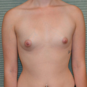 before breast augmentation front view case 893