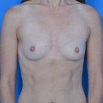 before breast augmentation front view case 908