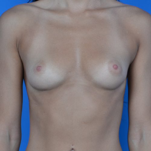 before breast augmentation front view case 876