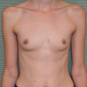 before breast augmentation front view case 922