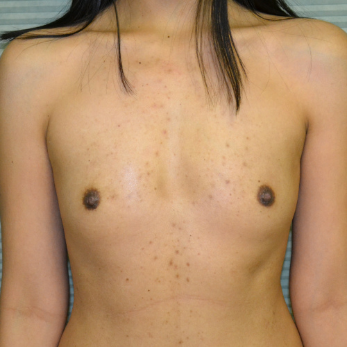 before breast augmentation front view case 900