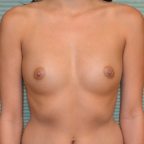 front view before breast augmentation case 869