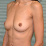 breast augmentation before procedure oblique view case 915