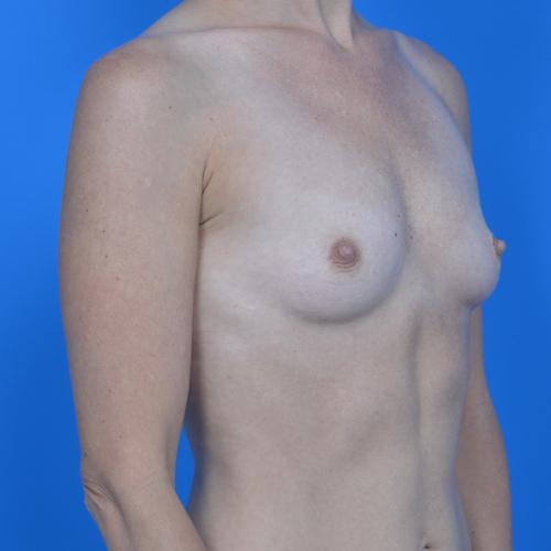 before breast augmentation oblique view case 908