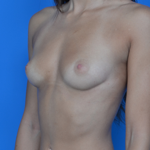 before breast augmentation left oblique view case 876
