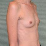 before breast augmentation oblique view case 922