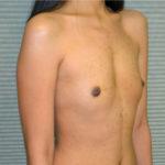 before breast augmentation oblique view case 900