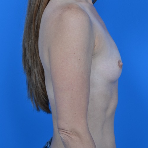 before breast augmentation right side view case 908