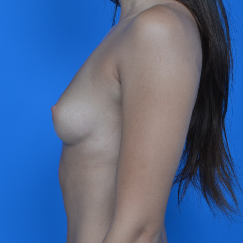 before breast augmentation left profile view case 876
