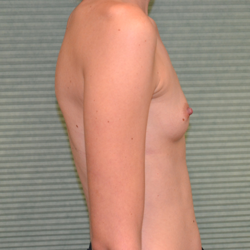 before breast augmentation right side view case 922