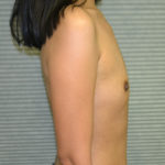 before breast augmentation right side view case 900