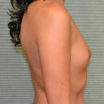 Breast augmentation before operation side view case 869