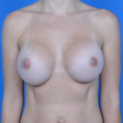 after breast augmentation front view case 883