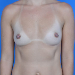 before breast augmentation front view case 883