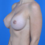 after breast augmentation left oblique view case 883