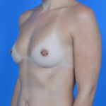 before breast augmentation left oblique view case 883