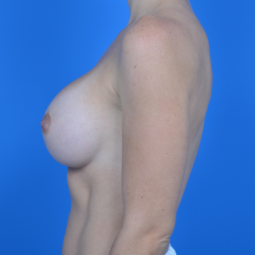 after breast augmentation left side view case 883