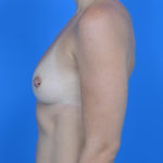 before breast augmentation left side view case 883