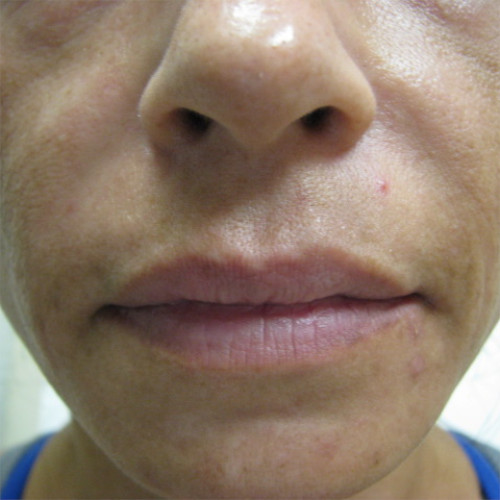 nasolabial fold closeup after Restylane case 1231