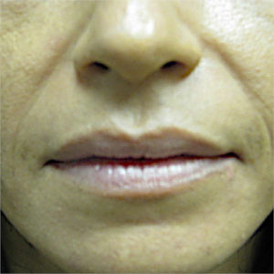 nasolabial fold closeup before Restylane case 1231