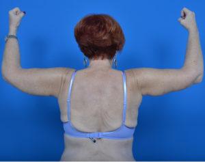 female patient arm lift after photo back view case 760