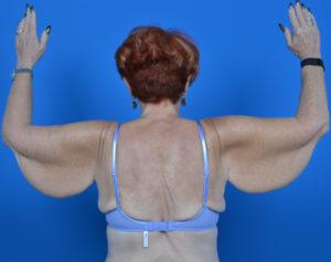 female patient arm lift before photo back view case 1204