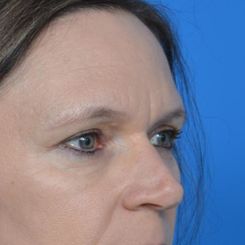 after eyelid surgery oblique view case 943