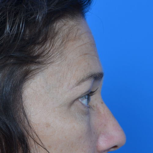 after eyelid surgery case 938 profile view