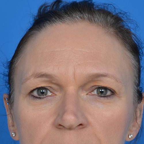 blepharoplasty before image front view case 943