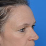 before eyelid surgery oblique view case 943