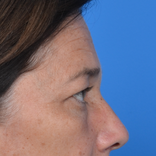 before eyelid surgery side view case 938
